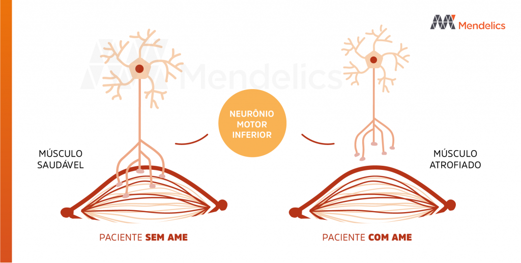 neuronio motor inferior musculo ame