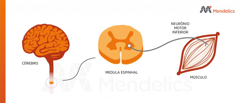 ame-medula-espinhal-neuronio